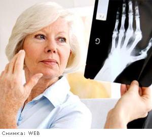 Билки при подагра артрит възпалени стави